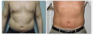 laser lipo body contouring results image male