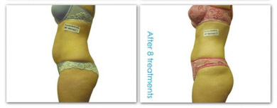 laser lipo body contouring results image