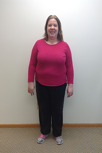 nuyou weightloss clinic client stacey h before