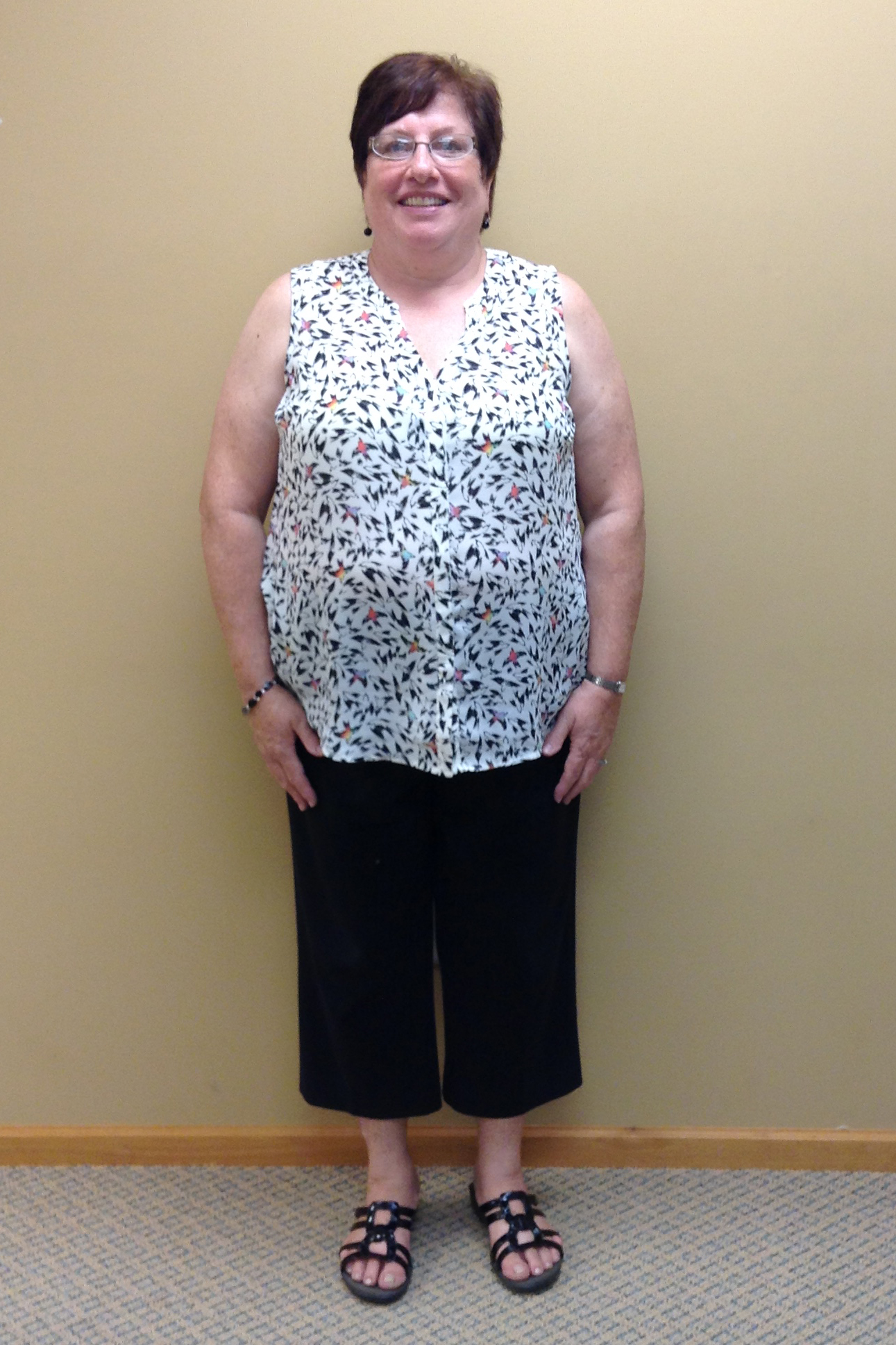 nuyou weight loss client vickie bain before