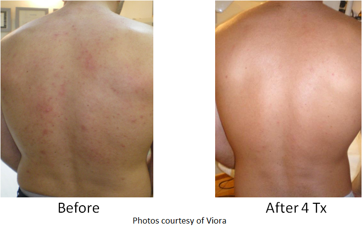 image of acne clearance from back before and after - sample 1