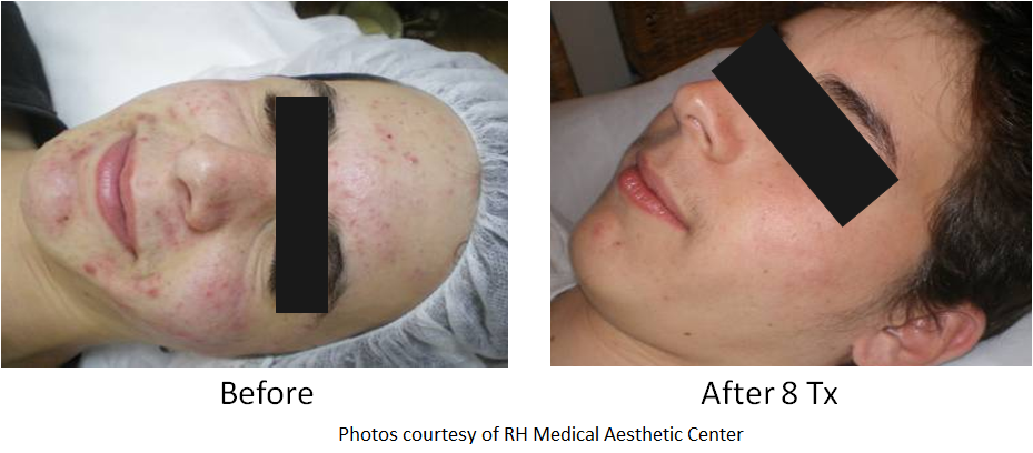 acne clearance image before and after sample 2