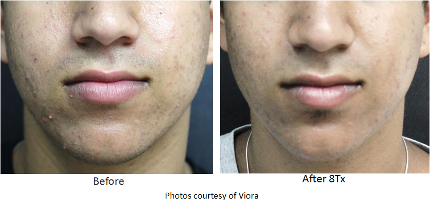 image of acne clearance before and after - sample 3