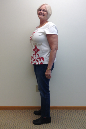 barb m before nuyou weight loss clinic trasnformation