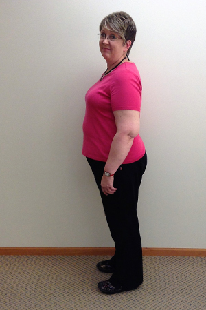 sherry s before nuyou weight loss clinic transformation
