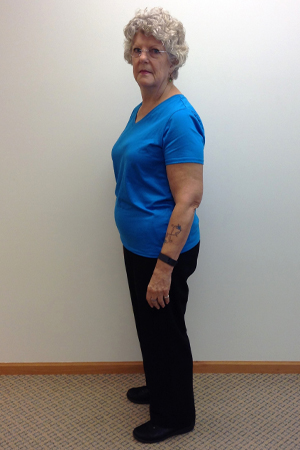 susan a before nuyou weight loss clinic transformation