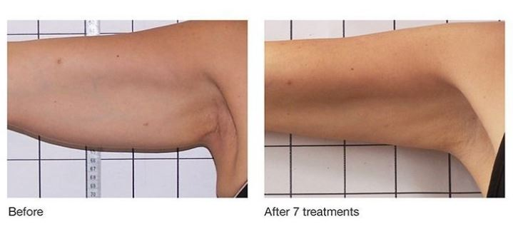 image of underarm before and after Refit body contouring
