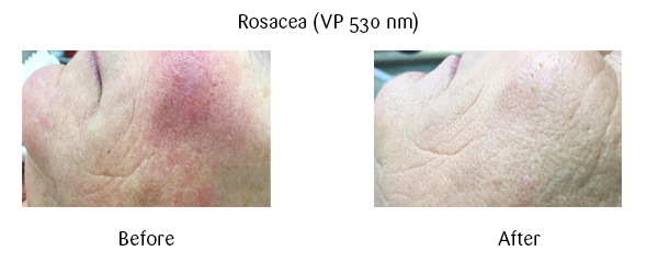 rosacea before and after image