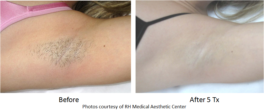 hair removal before and after image of underarm area