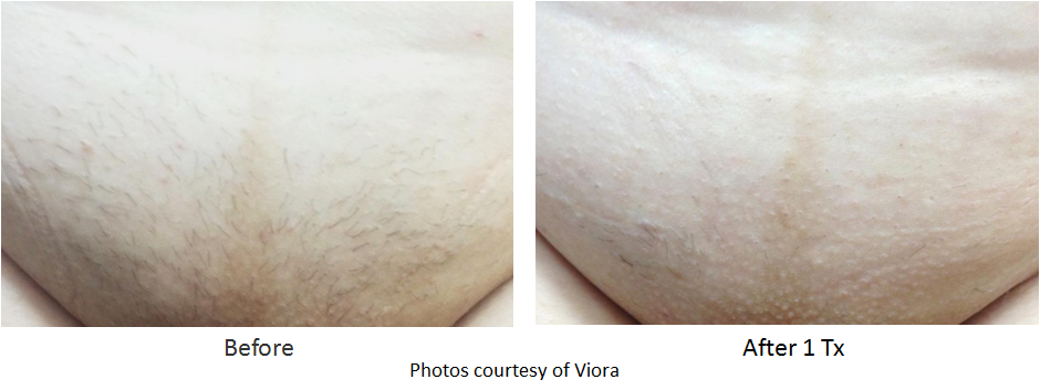 hair removal before and after image of chin area