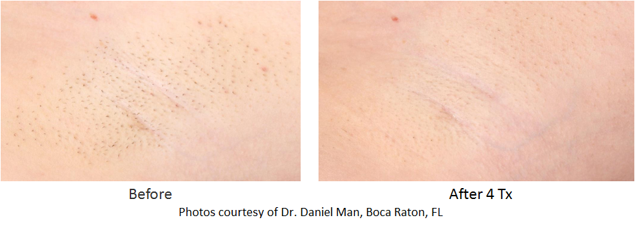 before and after image of hair removal underarm area
