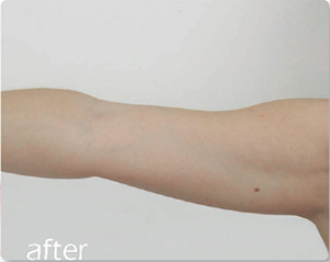image of afer skin tightening on arm