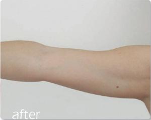 image of afer skin tightening on arm