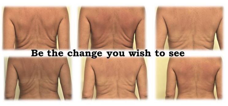 Image of back before and after Refit body contouring
