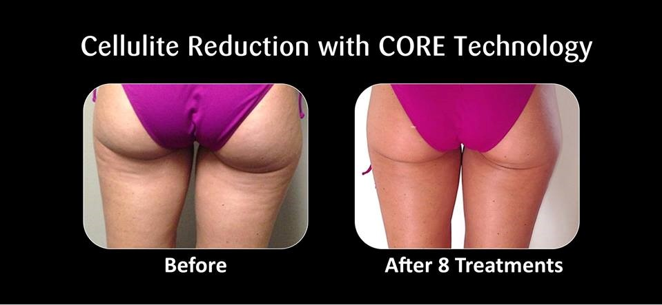 Image showing cellulite reduction following Refit body contouring treatments available at NuYou.