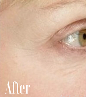 image of eye after skin tightening