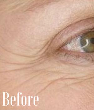 image of eye before skin tightening