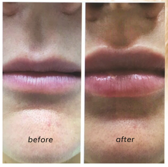 image of before and after lip plumping Relift Skin Tightening.
