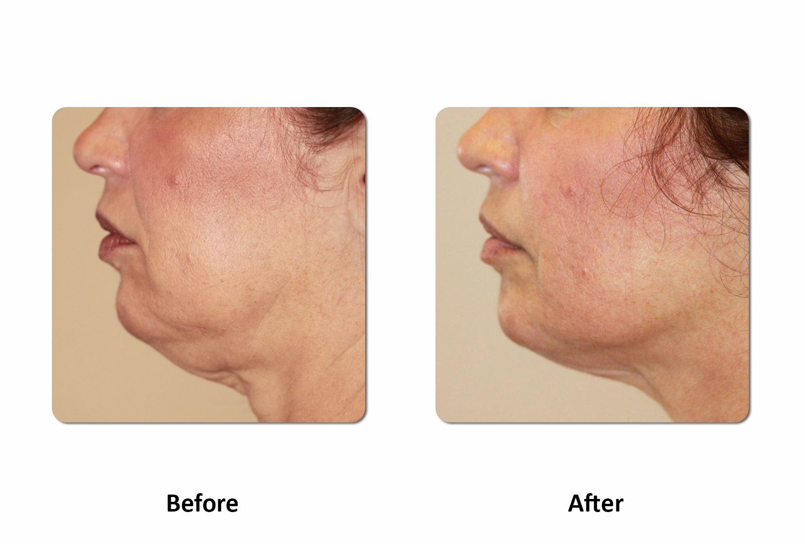 image of neck before and after a refit body contouring treatment