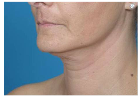 After image of body contouring on the underchin area.