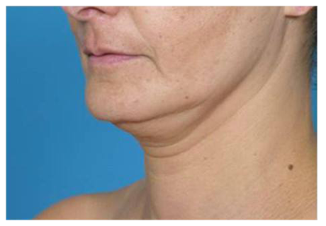 Before image of chin area for body contouring treatment.