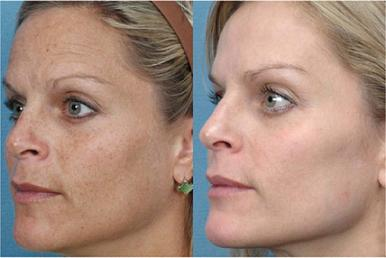 Before and After images of skin rejuvenation for age and sun spots