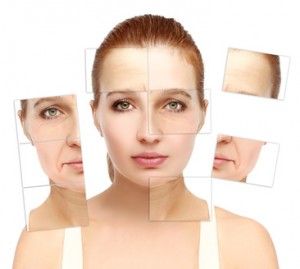 image of before and after skin rejuvenation treatments for skin laxity around mouth or marionette lines