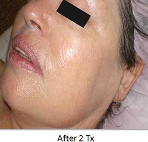 Image of skin rosacea after skin rejuvenation from NuYou.