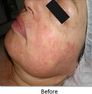 Image of skin rosacea before skin rejuvenation