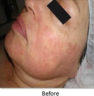 Image of skin rosacea before skin rejuvenation