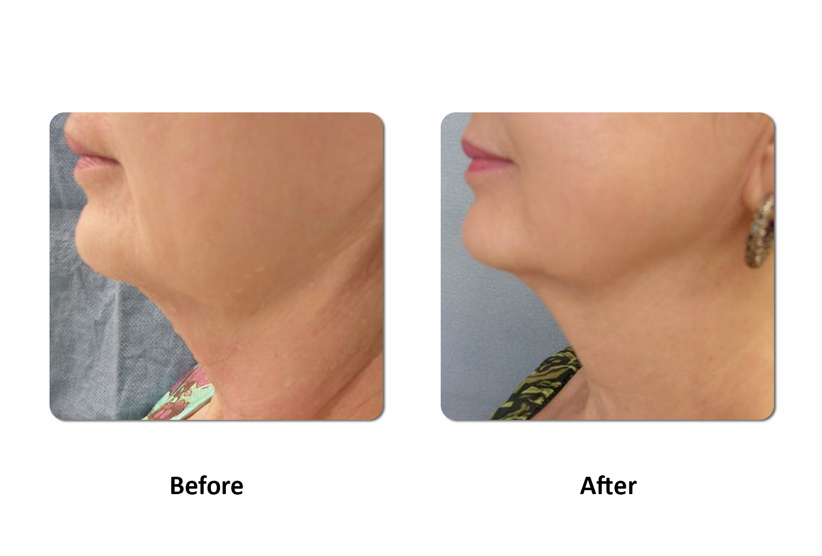 ReLift Chin before and After images