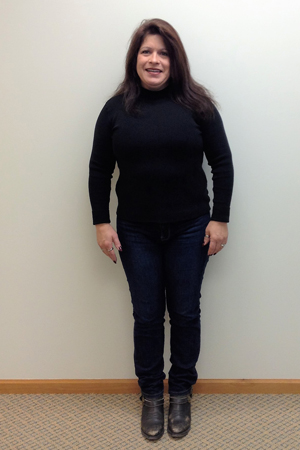 deb h nuyou weight loss clinic before photo