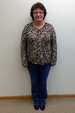 jeanne w nuyou weight loss clinic before photo