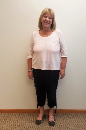 rosemary v nu you weight loss clinic before program photo