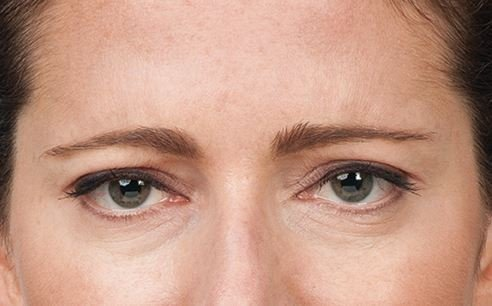 Botox Treatment AFter forward results