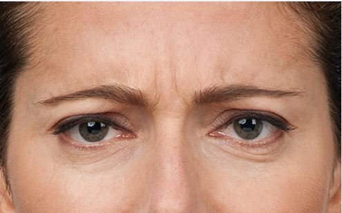 Botox treatment -before image