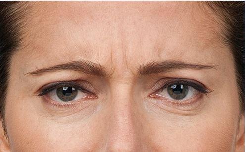 Botox treatment -before image