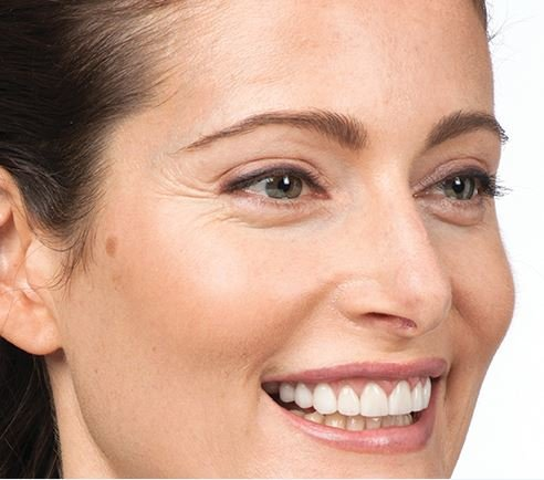 Botox before treatment of crow's feet/eye area