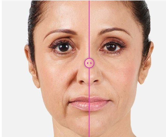 Juvederm before and after image