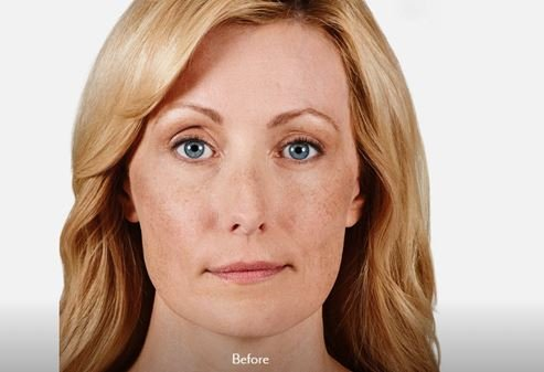Image of face before Juvederm treatment