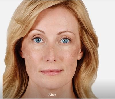 Juvederm after treatment