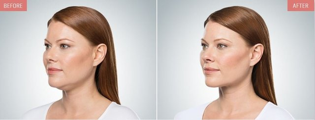 Before and after images of a Kybella treatment of the chin area