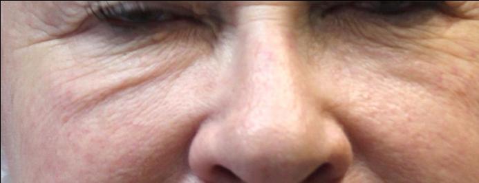 image of skin rejuvenation around eyes before yag treatment