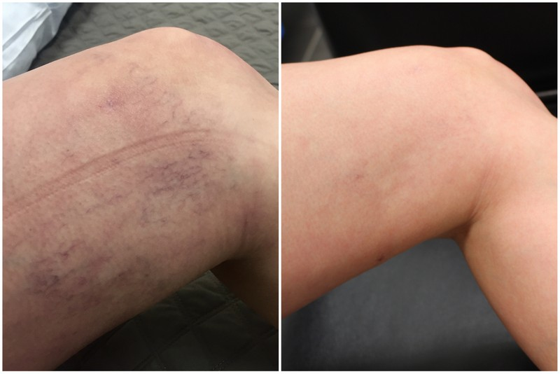 Spider veins before and after images from YAG treatment service.